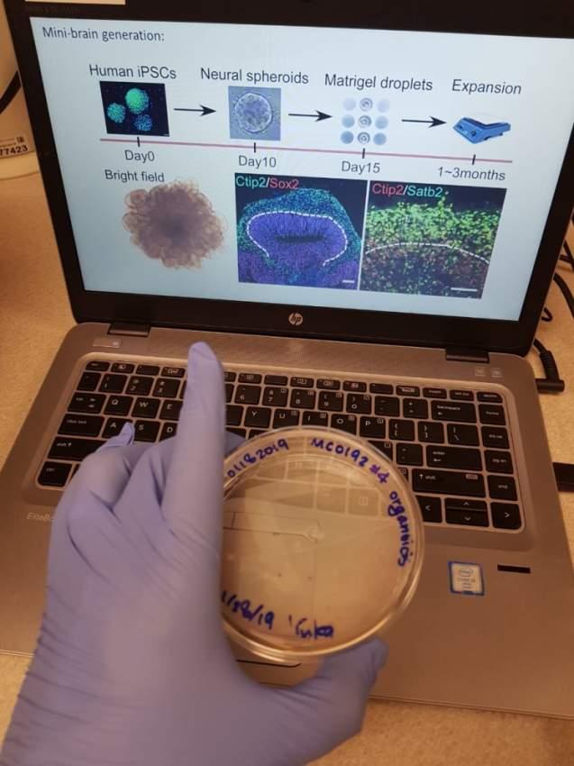 الخلايا الجذعية المرسلة إلى الفضاء تُعد كنزاً علمياً لتطوير العلاج المنتظر.