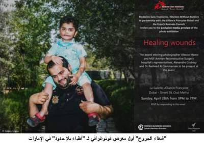 شفاء الجروح أول معرض فوتوغرافي لـ أطباء بلا حدود في الإمارات