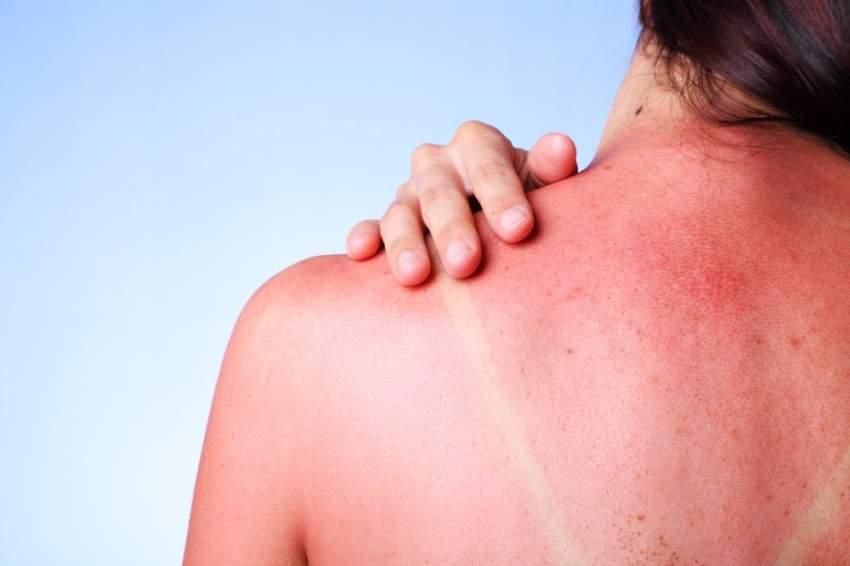 تحذير طبي: «تاتو الشمس» يدمّر خلايا الجلد