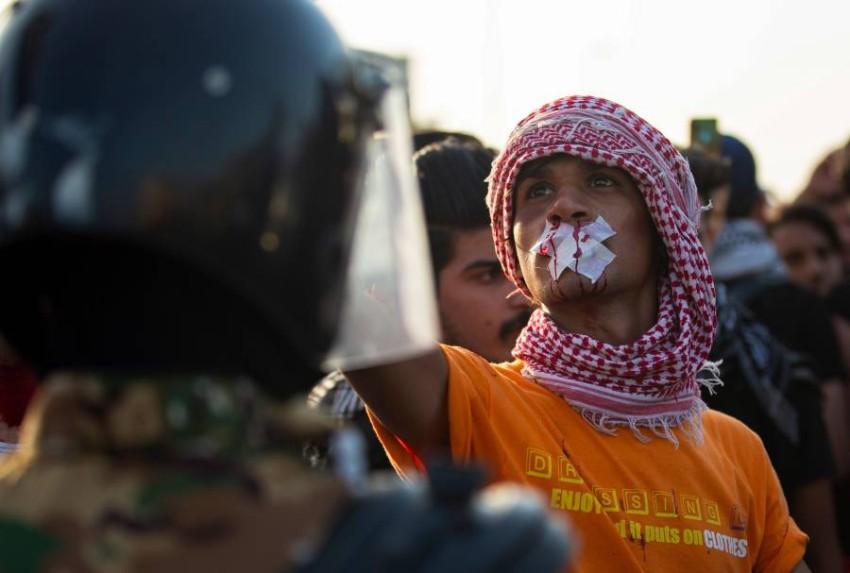 متظاهر عراقي مصاب في مواجهة الأمن. (أ ف ب)
