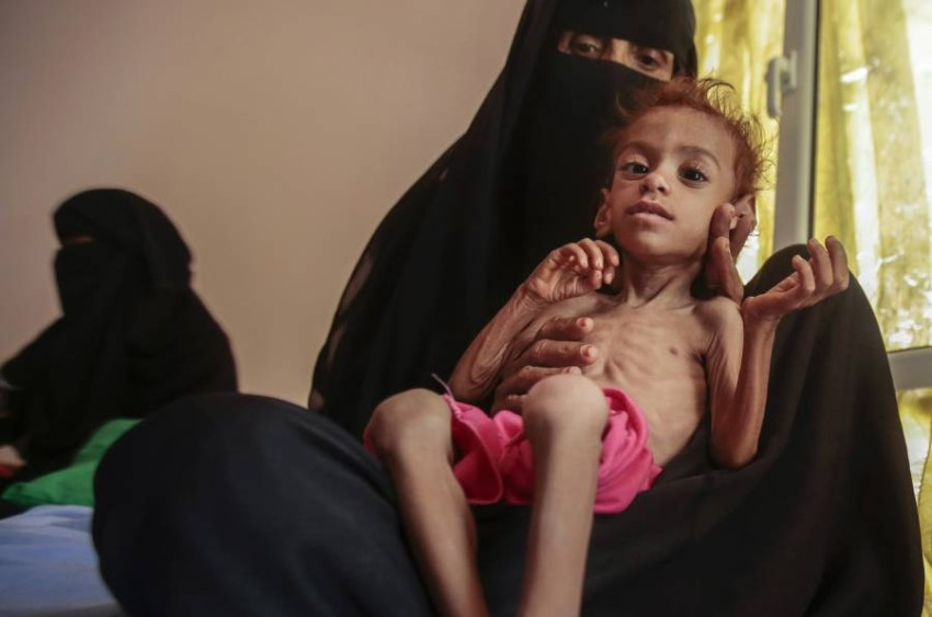 سوء التغذية الحاد يهدد حياة 2,3 مليون طفل يمني. (أ ب)